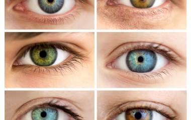 Heterochromia: przyczyny, objawy, leczenie. Heterochromia oczu: choroba czy wyjątkowa uroda?