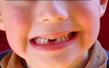 Co zrobić, gdy dziecko wybije sobie ząb?