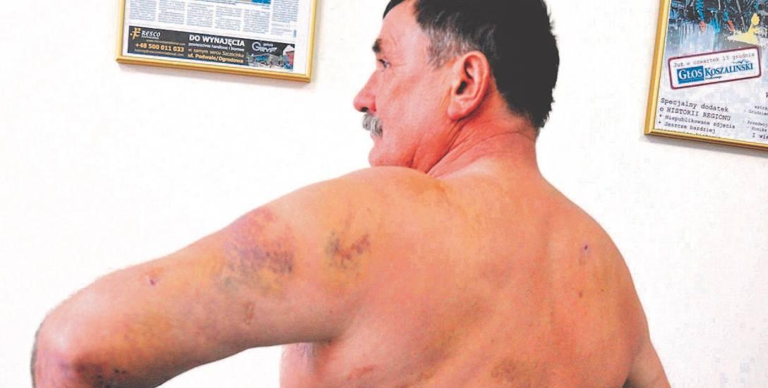 Tak po policyjnej interwencji jesienią 2015 roku wyglądał Andrzej Turowski. Biegły ustalił, że razy policyjną pałką zadano mu już gdy leżał na ziemi