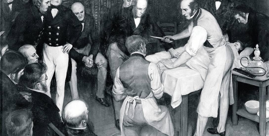 Operacja z początku XIX w.