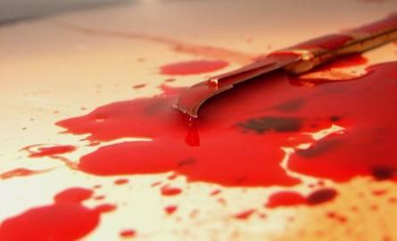 Mosina: Próbowała zabić ciężarną? Zadała jej kilka ciosów nożem