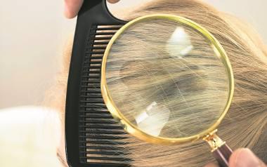 Łupież wymaga interwencji lekarza, może doprowadzić do łojotokowego zapalenia skóry, a nawet do łysienia