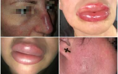 Na początku tego roku opisaliśmy historie kobiet, które twierdzą, że zostały skrzywdzone przez kosmetologów. Tak wyglądały ich twarze po zabiegu.Kolejne