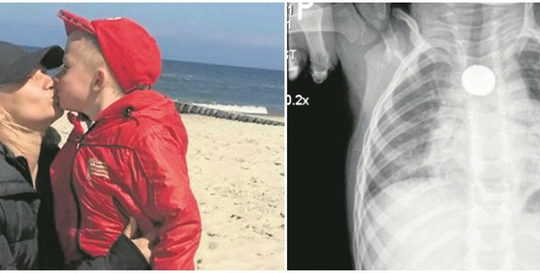 Mój synek mógł umrzeć, bo lekarze nie wierzyli nam, że połknął baterię