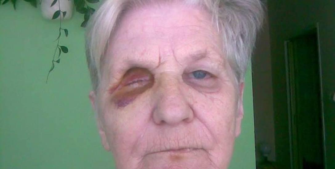 Osiem lat temu pani Józefa straciła oko po nieudanym zabiegu usunięcia zaćmy