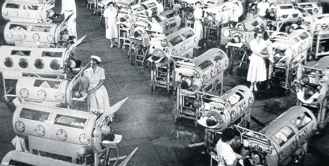 Podczas epidemii polio produkowano żelazne płuca dla dzieci, które nie mogły samodzielnie oddychać