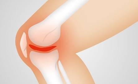 Ból kolana jako objaw wielu chorób – przyczyny i leczenie