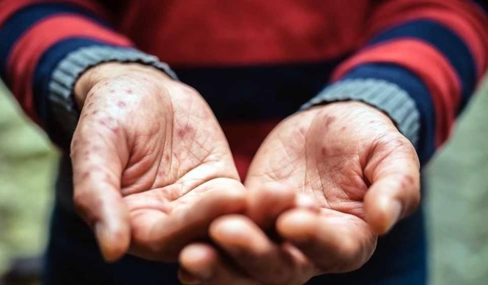 Film do artykułu: Odra na Śląsku: Chorych na odrę przybywa. Sanepid szczepi 300 zagrożonych chorobą osób