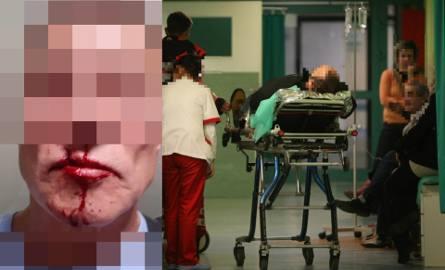 Pacjent wrocławskiego szpitala przy ul. Borowskiej oskarża lekarza o pobicie. - To ty gnoju miałeś czelność iść na mnie na skargę - miał krzyknąć do