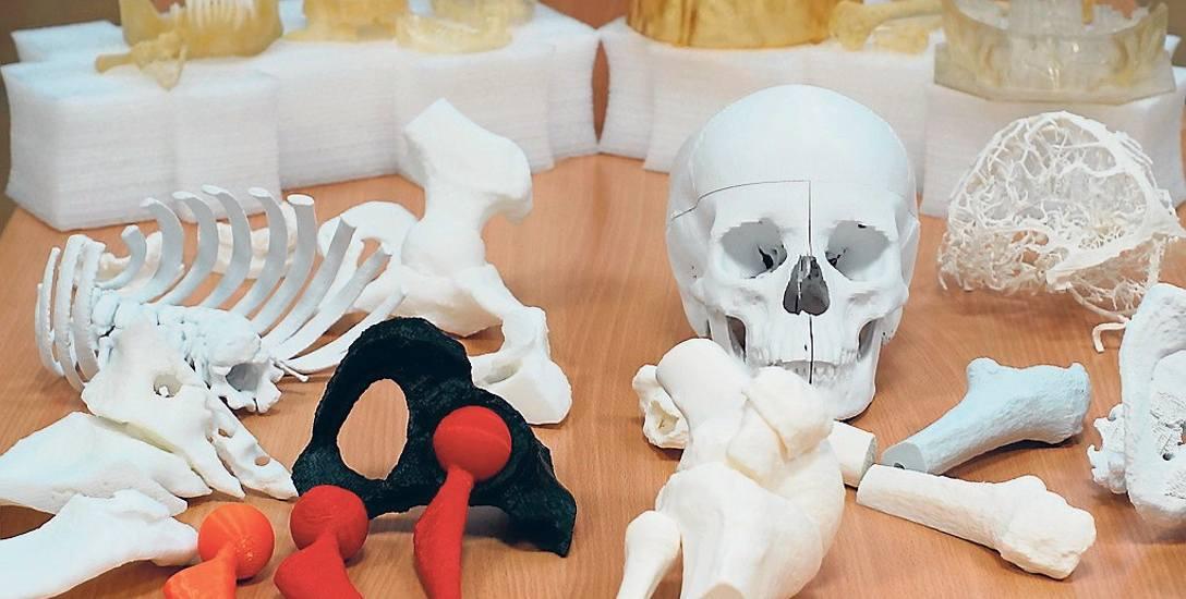 Trójwymiarowe modele m.in. narządów ruchu pomagają lekarzom w planowaniu operacji