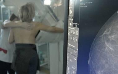 Radom. Bezpłatne badania mammograficzne już we wrześniu. Przebadaj się!
