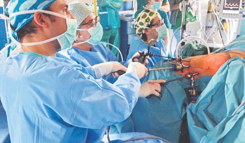 Film do artykułu: Krakowscy lekarze dokonali przełomu w operowaniu raka