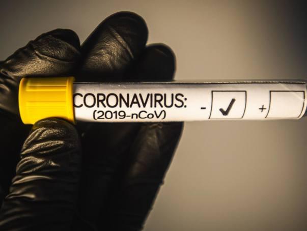 Badania laboratoryjne przyniosły pozytywne wyniki testów na obecność koronawirusa już blisko 1720 osób w całym kraju.
