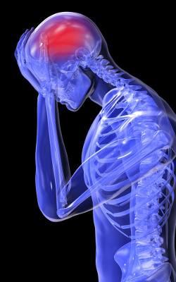 Wylew do mózgu (udar mózgu) - objawy i przyczyny