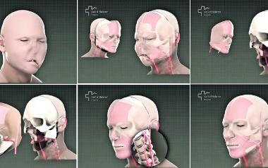 Maj. Pierwszy w Polsce udany przeszczep twarzy